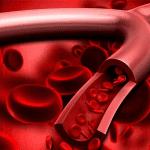 Chất nào làm dày mạch máu?!